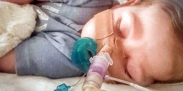 Murió Charlie Gard, El Bebé Británico Por El Que Intercedieron Donald Trump Y El Papa Francisco.